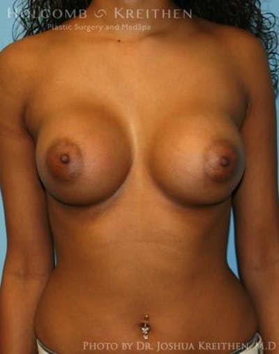 Breast Augmentation Gallery - Patient 6236618 - Image 2