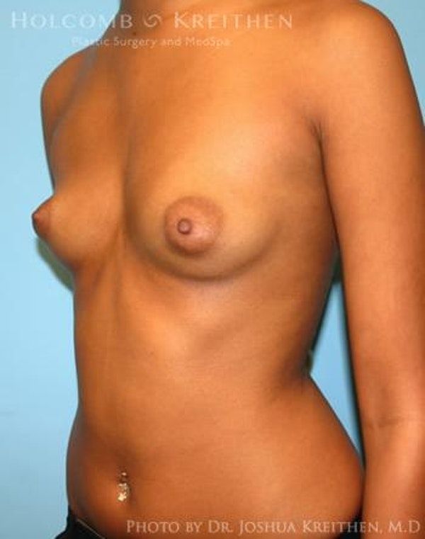 Breast Augmentation Gallery - Patient 6236618 - Image 3