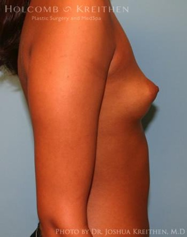 Breast Augmentation Gallery - Patient 6236618 - Image 5