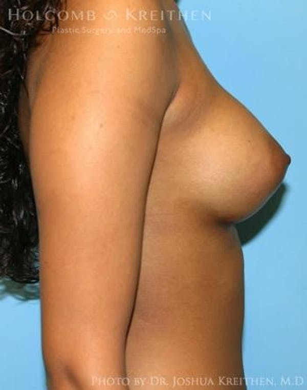 Breast Augmentation Gallery - Patient 6236618 - Image 6