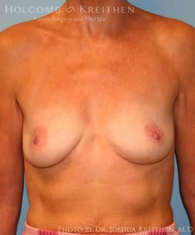 Breast Augmentation Gallery - Patient 6236620 - Image 36