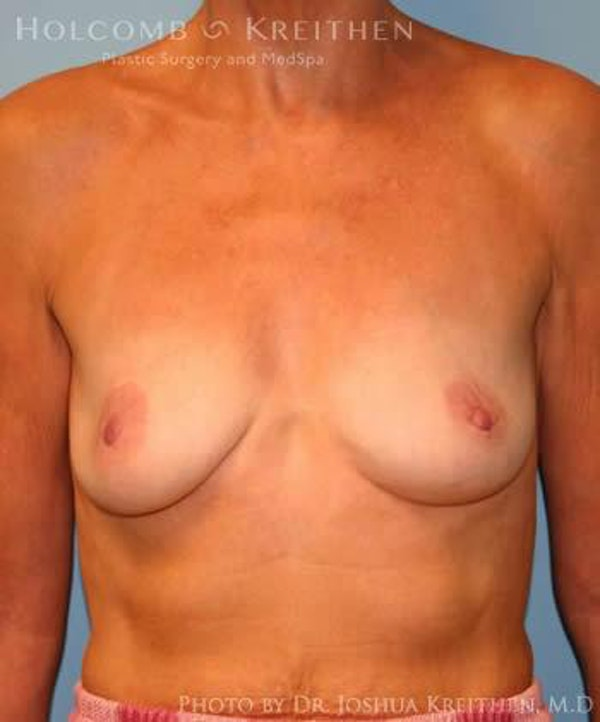 Breast Augmentation Gallery - Patient 6236620 - Image 1