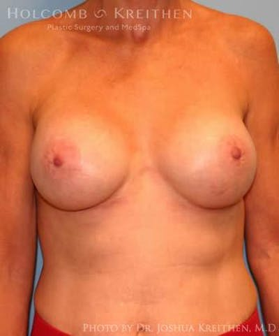 Breast Augmentation Gallery - Patient 6236620 - Image 2