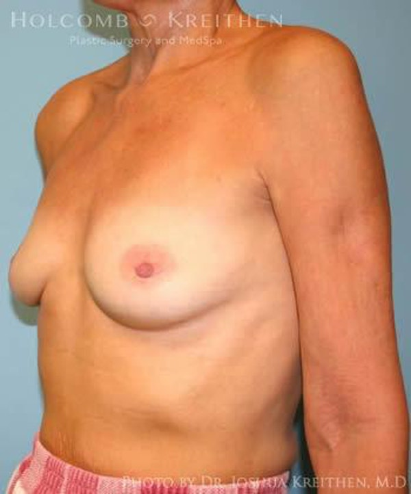 Breast Augmentation Gallery - Patient 6236620 - Image 3