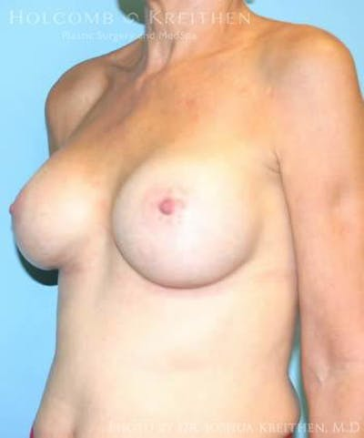 Breast Augmentation Gallery - Patient 6236620 - Image 4
