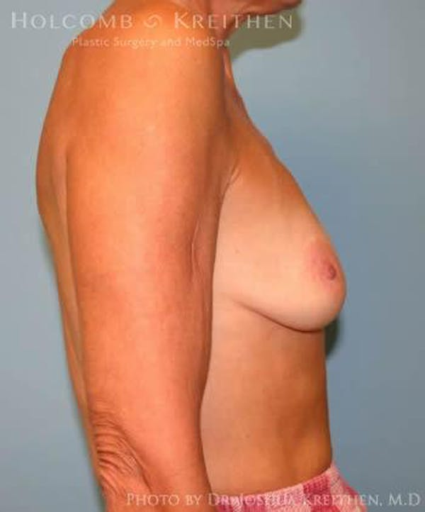 Breast Augmentation Gallery - Patient 6236620 - Image 5