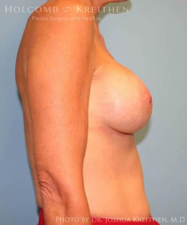 Breast Augmentation Gallery - Patient 6236620 - Image 6