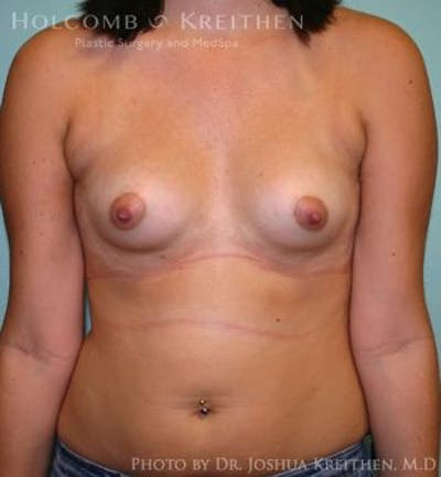 Breast Augmentation Gallery - Patient 6236623 - Image 1