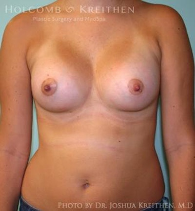 Breast Augmentation Gallery - Patient 6236623 - Image 2