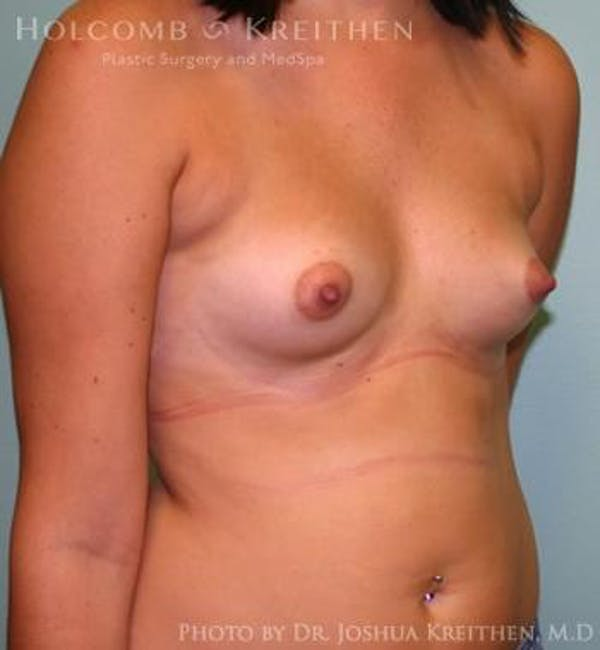 Breast Augmentation Gallery - Patient 6236623 - Image 3