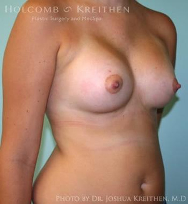 Breast Augmentation Gallery - Patient 6236623 - Image 4
