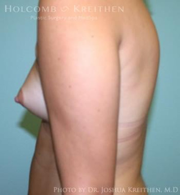 Breast Augmentation Gallery - Patient 6236623 - Image 5
