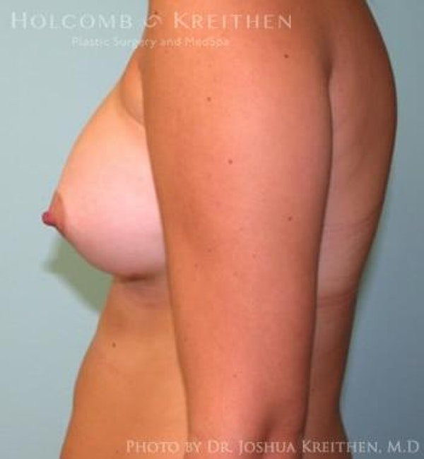 Breast Augmentation Gallery - Patient 6236623 - Image 6