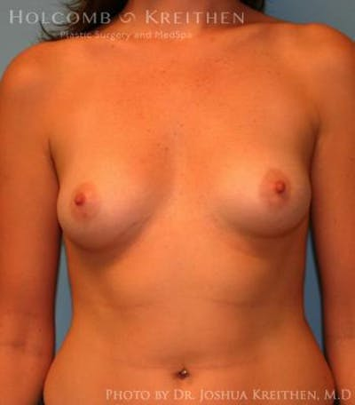 Breast Augmentation Gallery - Patient 6236627 - Image 1