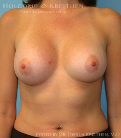 Breast Augmentation Gallery - Patient 6236627 - Image 2