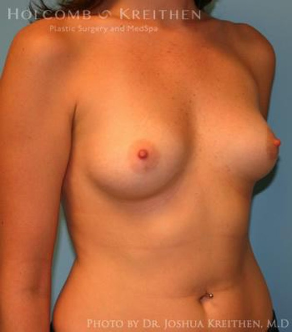 Breast Augmentation Gallery - Patient 6236627 - Image 3