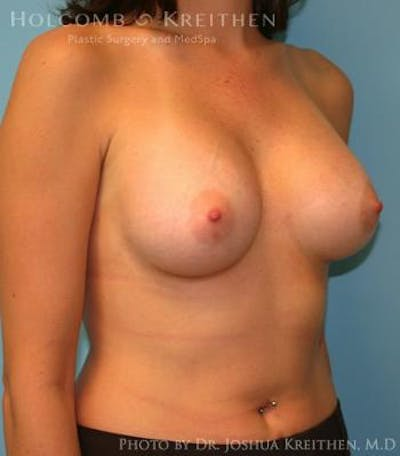 Breast Augmentation Gallery - Patient 6236627 - Image 4