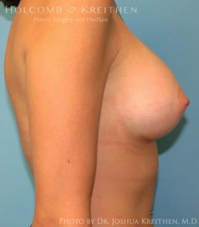 Breast Augmentation Gallery - Patient 6236627 - Image 6