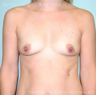 Breast Augmentation Gallery - Patient 6236629 - Image 1
