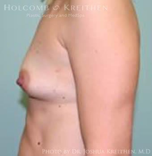 Breast Augmentation Gallery - Patient 6236629 - Image 5