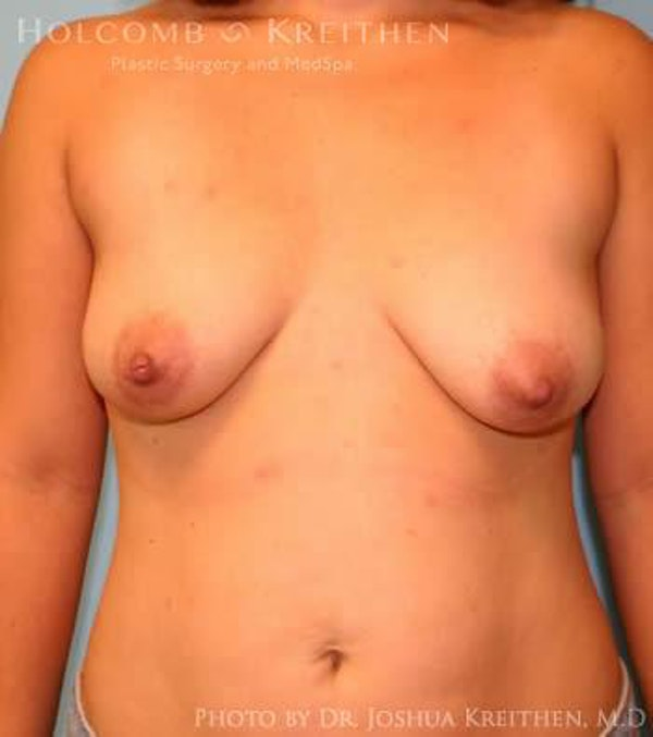 Breast Augmentation Gallery - Patient 6236633 - Image 1