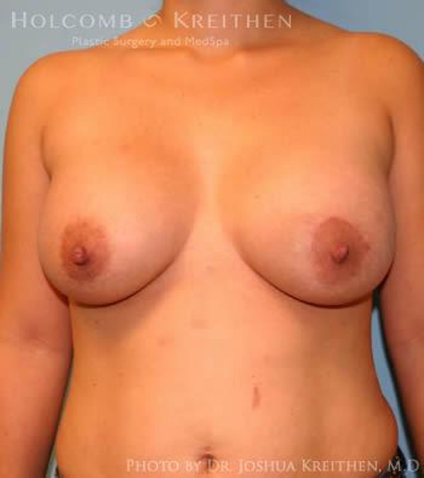 Breast Augmentation Gallery - Patient 6236633 - Image 2