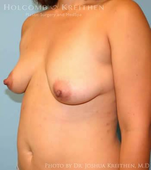 Breast Augmentation Gallery - Patient 6236633 - Image 3