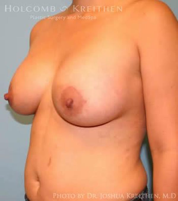 Breast Augmentation Gallery - Patient 6236633 - Image 4