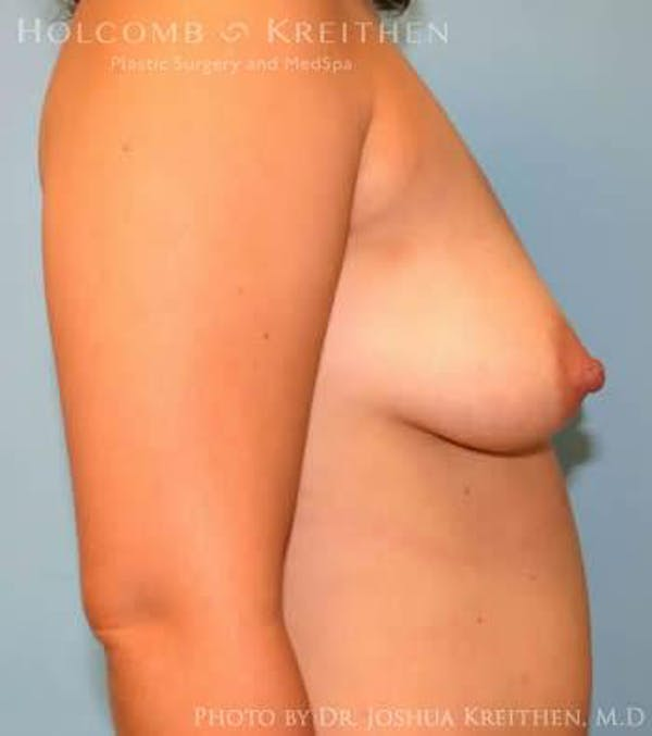 Breast Augmentation Gallery - Patient 6236633 - Image 5
