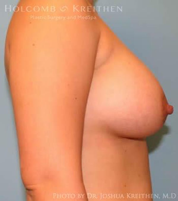 Breast Augmentation Gallery - Patient 6236633 - Image 6