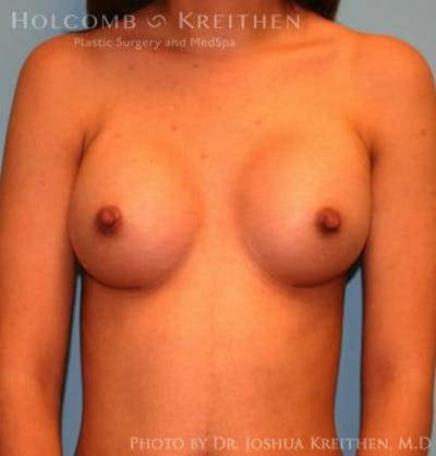 Breast Augmentation Gallery - Patient 6236636 - Image 2