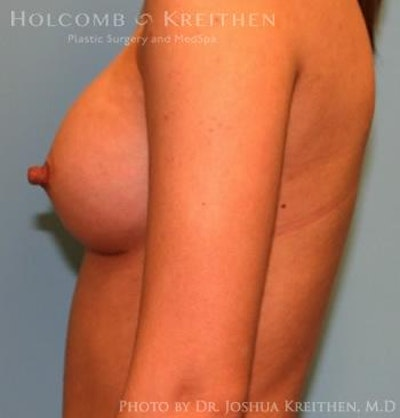 Breast Augmentation Gallery - Patient 6236636 - Image 6