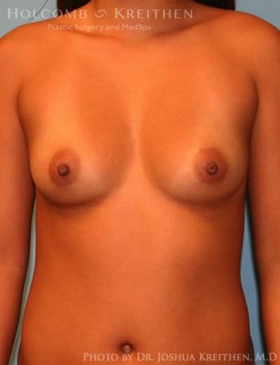 Breast Augmentation Gallery - Patient 6236637 - Image 1