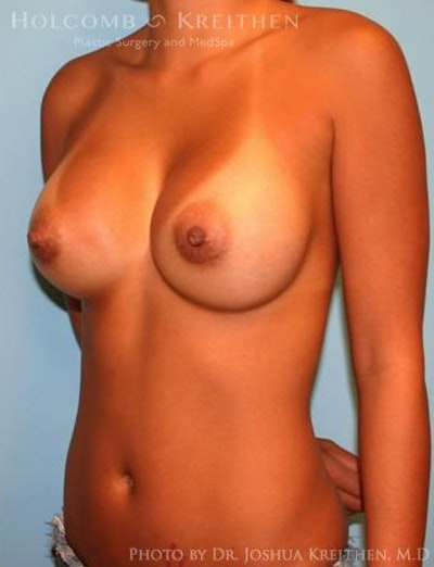 Breast Augmentation Gallery - Patient 6236637 - Image 4