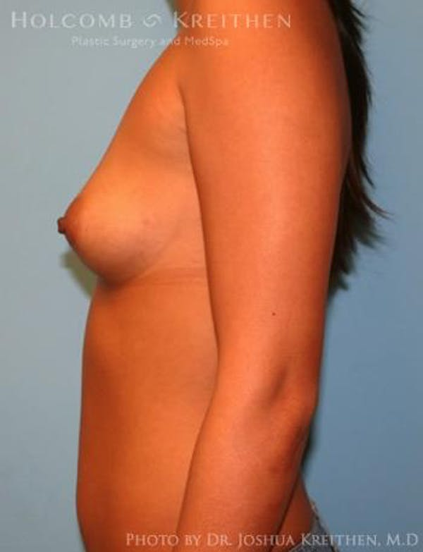 Breast Augmentation Gallery - Patient 6236637 - Image 5