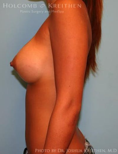 Breast Augmentation Gallery - Patient 6236637 - Image 6