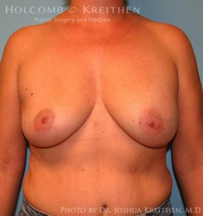 Breast Augmentation Gallery - Patient 6236644 - Image 1