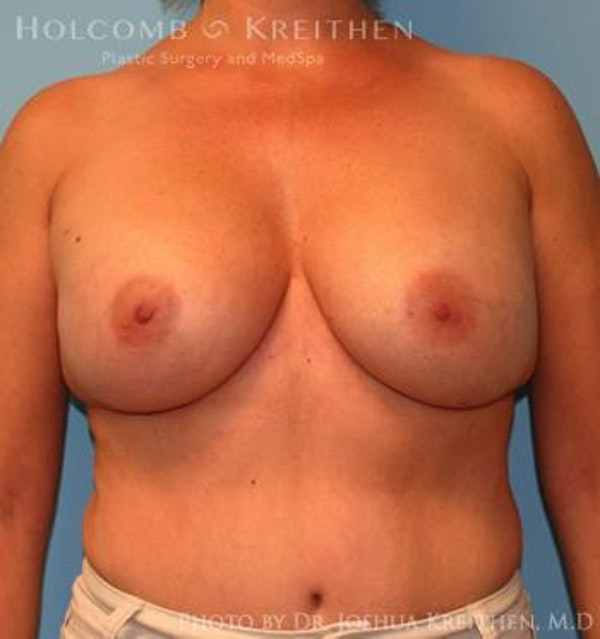 Breast Augmentation Gallery - Patient 6236644 - Image 2