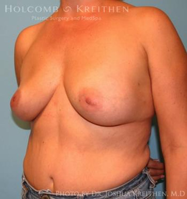 Breast Augmentation Gallery - Patient 6236644 - Image 3