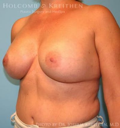 Breast Augmentation Gallery - Patient 6236644 - Image 4
