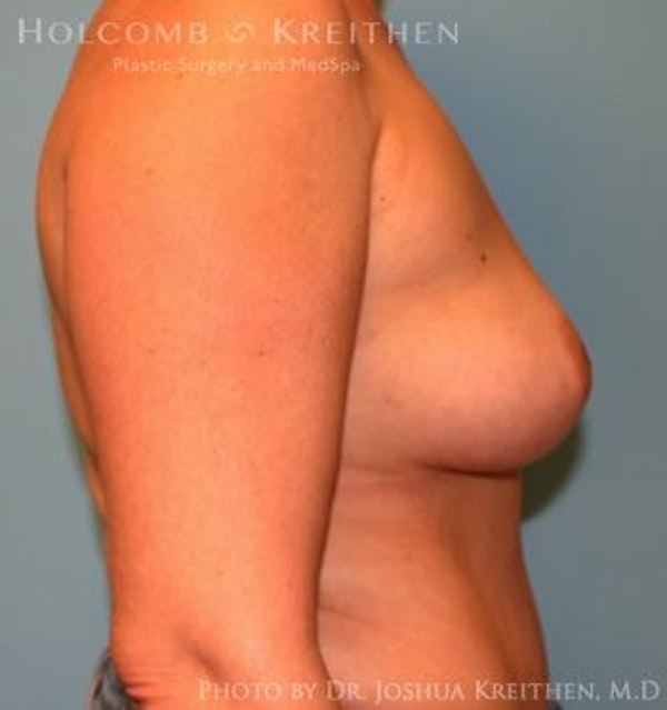 Breast Augmentation Gallery - Patient 6236644 - Image 5