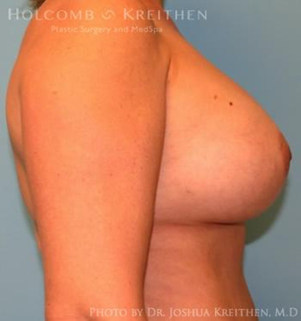 Breast Augmentation Gallery - Patient 6236644 - Image 6