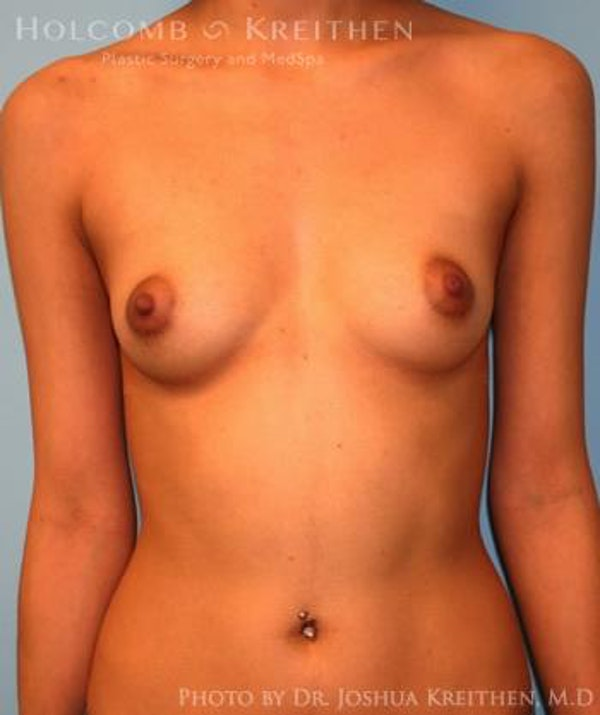 Breast Augmentation Gallery - Patient 6236646 - Image 1