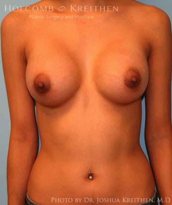 Breast Augmentation Gallery - Patient 6236646 - Image 2