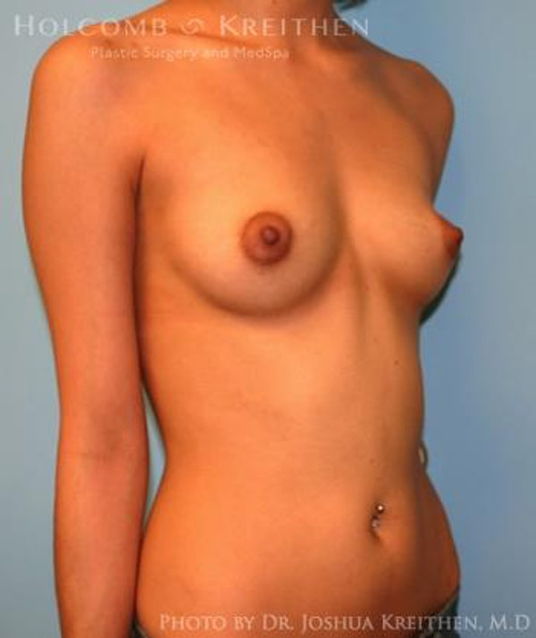 Breast Augmentation Gallery - Patient 6236646 - Image 3
