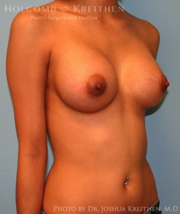 Breast Augmentation Gallery - Patient 6236646 - Image 4