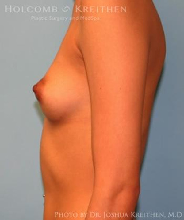 Breast Augmentation Gallery - Patient 6236646 - Image 5