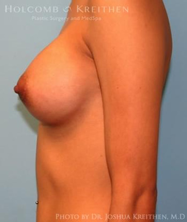 Breast Augmentation Gallery - Patient 6236646 - Image 6