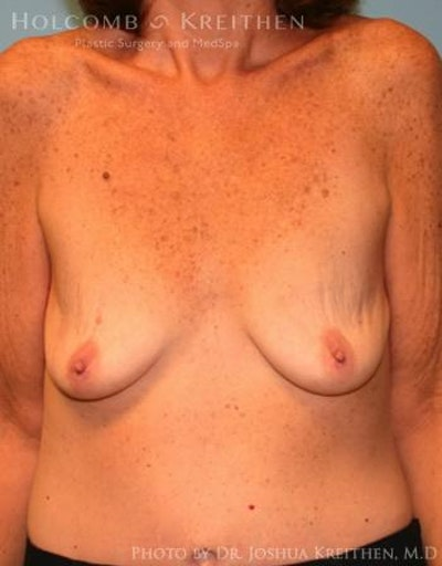 Breast Augmentation Gallery - Patient 6236648 - Image 1