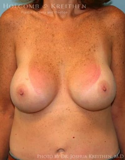 Breast Augmentation Gallery - Patient 6236648 - Image 2